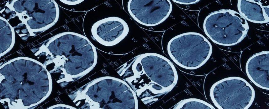 Een hersenscanner om iemands gedachten te lezen, mag dat?